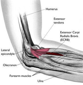 elbow-surgery-Lateral-Epicondylitis