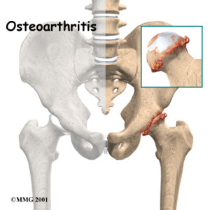 hip-surgery-for-osteoarthritis