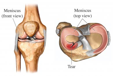 meniscus-tear-view