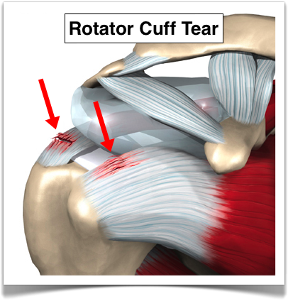 visible-rotator-cuff-tear