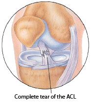 severe-acl-tear