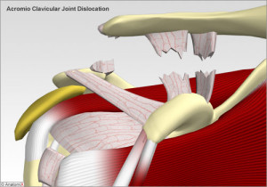 Acromioclavicular Joint Dislocation