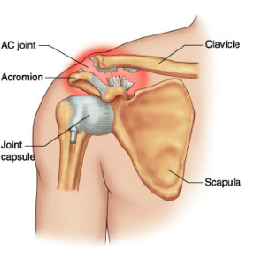 Acromioclavicular Joint Dislocation-anatomy