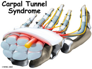 Wrist Carpal Tunnel Syndrome