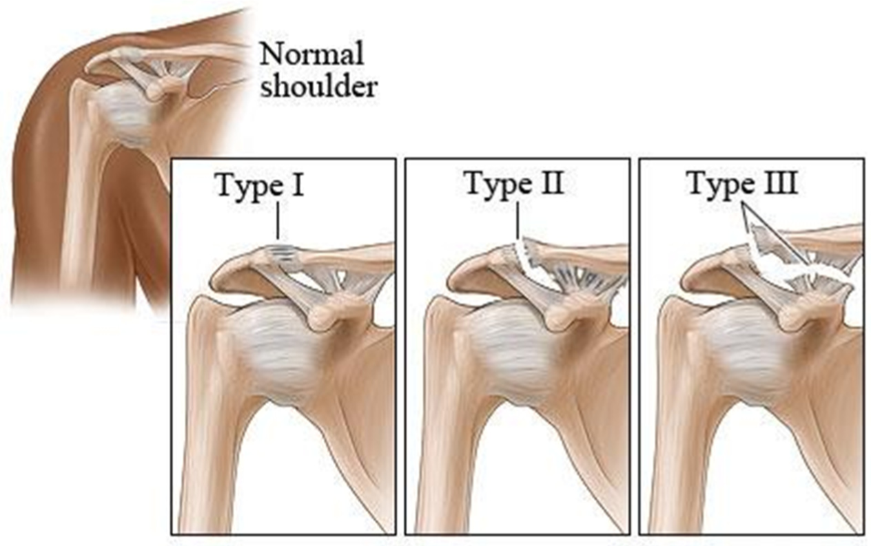 Shoulder Dislocations Types Ac-joint-dislocation-types