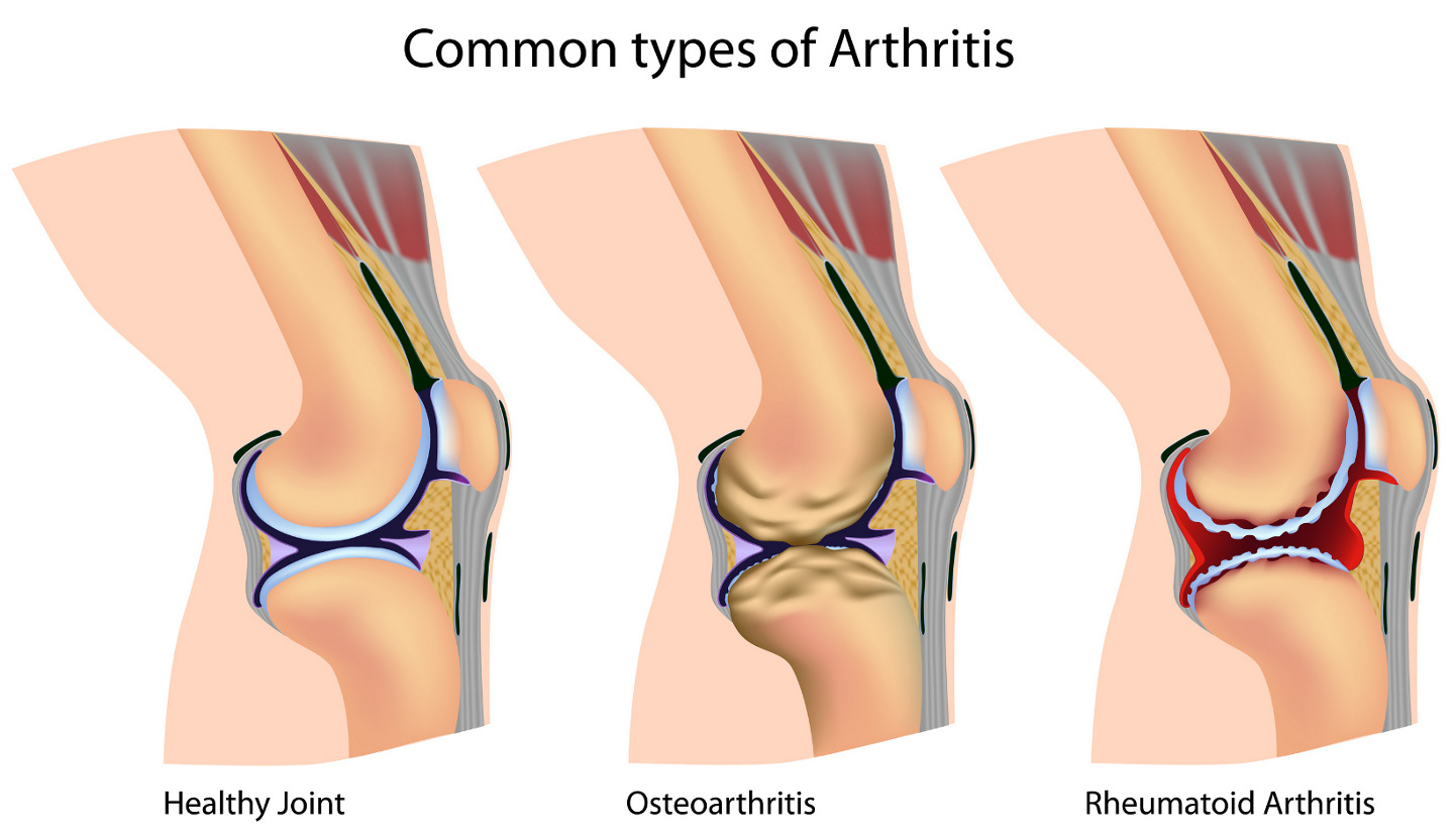 Osteoarthritis Often Gets Worse Before Knee Replacement