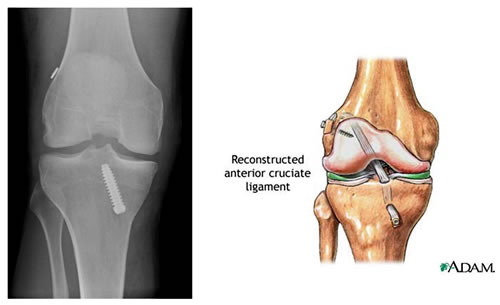 ReconstructedACL-Pic