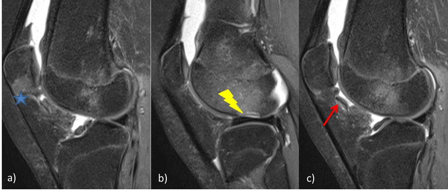 patellar cartilage's