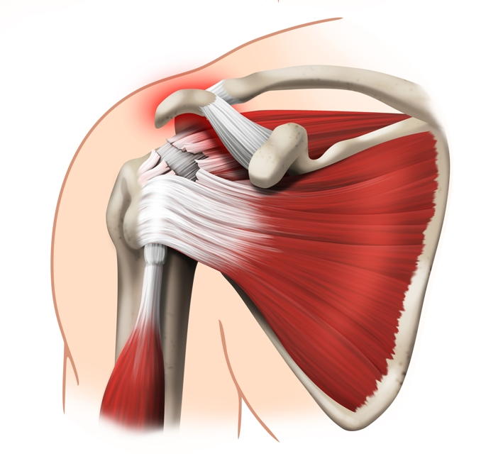 Not Rotator Cuff Tears