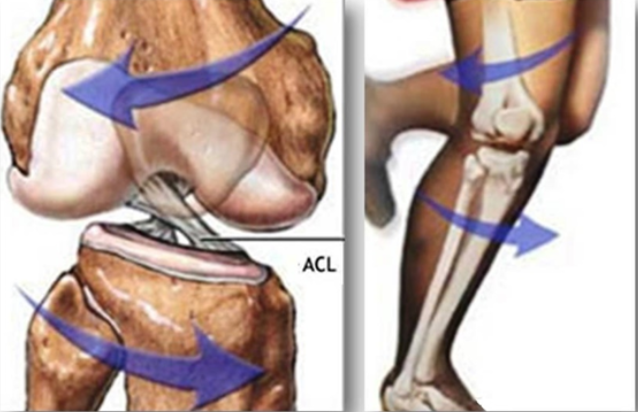 Subsequent ACL Surgeries