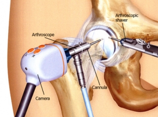 eligible for a hip arthroscopy