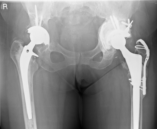 hip replacement x ray2
