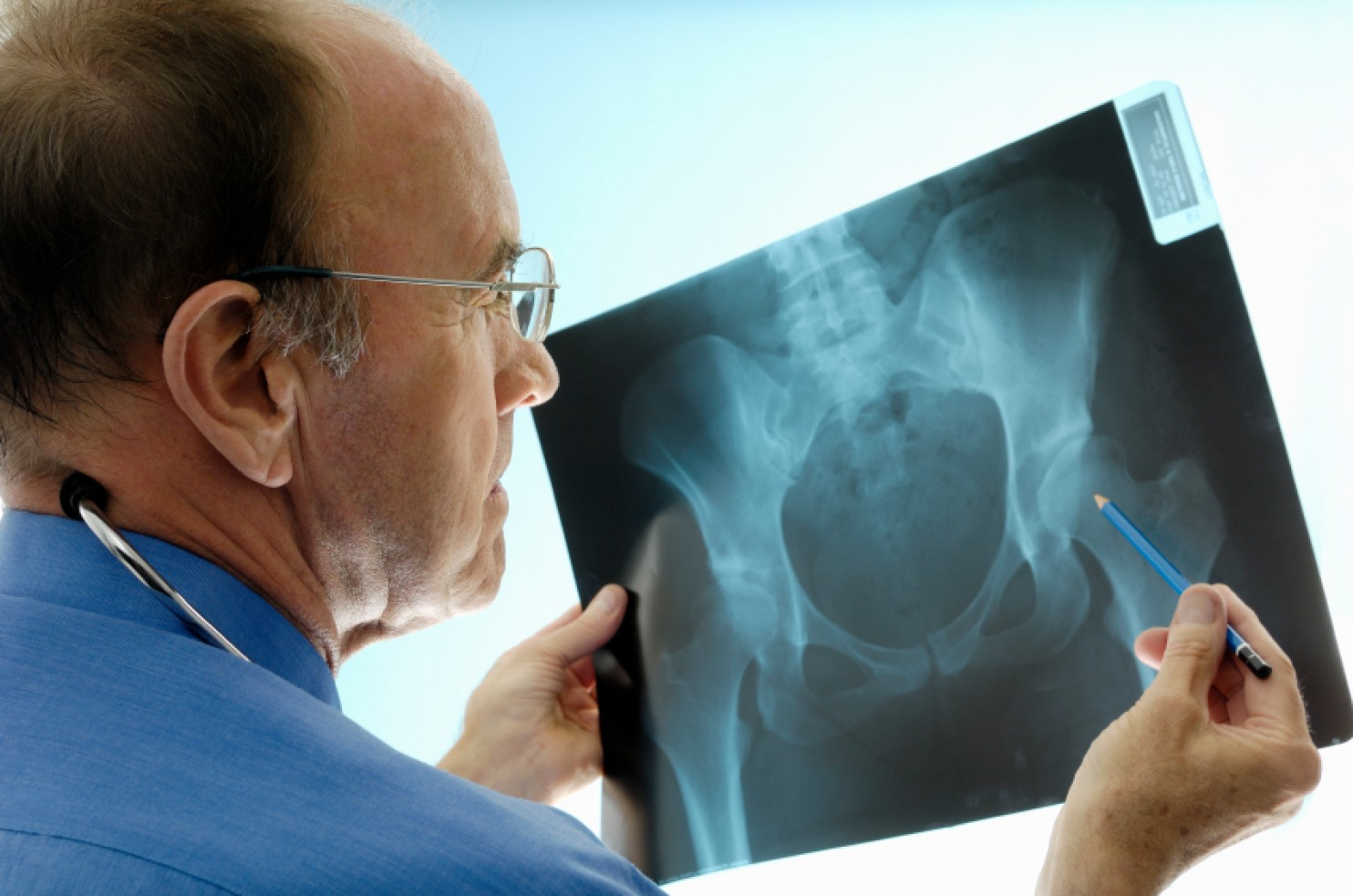 doctor with hip x ray