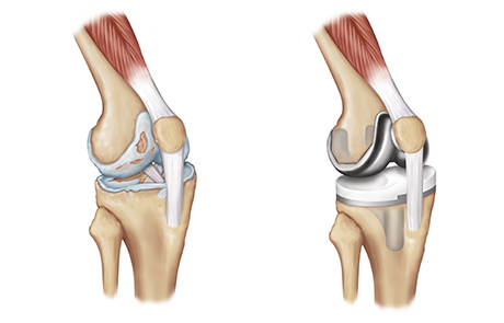 Knee replacement 2