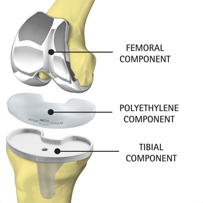 Total Knee Replacement 5