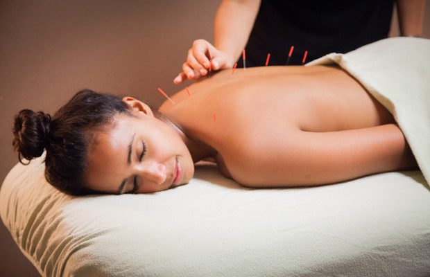 Advantages-of-Acupuncture-Treatment-620x400